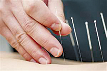 CBN_13_Jan16_Accupuncture_needle_hand