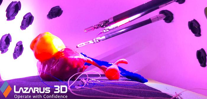 Lazarus 3D Revolutionizing Healthcare